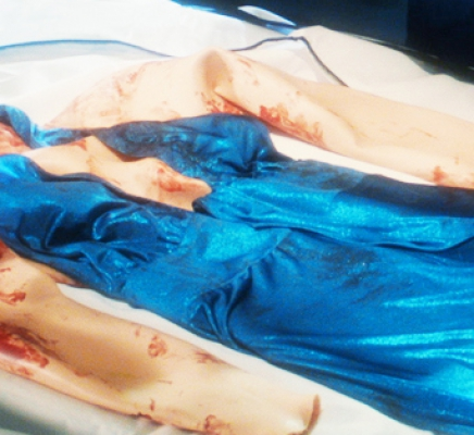 CSI: Rubbery Homicide